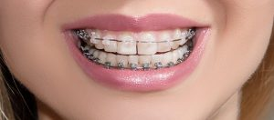 Clear (Ceramic) Braces