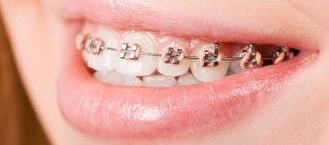 Traditional (Metal) Braces